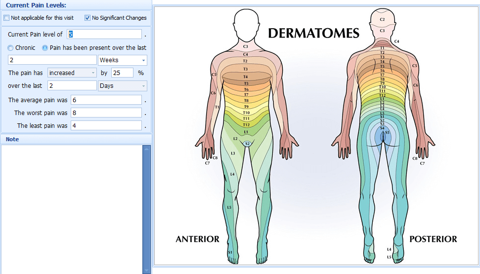 Dematome Mapping Image